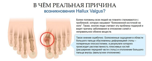 valufix – вальгусная шина: отзывы, где купить?