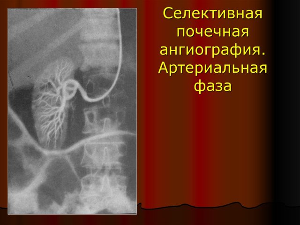 АНГИОГРАФИЯ СОСУДОВ ПОЧЕК: [5 видов диагностики]