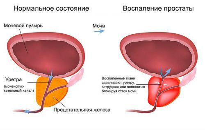 УЗИ мочевого пузыря: как делается и что показывает?