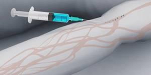Урография почек с применением контрастного вещества: как проводится?
