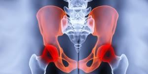 УЗИ тазобедренных суставов у взрослых: [что показывает]