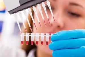 АЧТВ в анализе крови – что это: расшифровка, норма