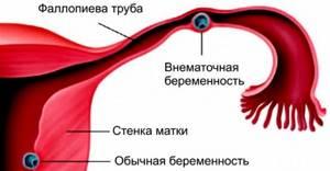 Внематочная беременность на УЗИ: фото, можно ли увидеть ее?
