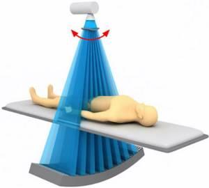 Компьютерная томография брюшной полости (КТ): что показывает, как проходит?