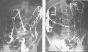 Ирригоскопия кишечника: что это такое и как проводится?