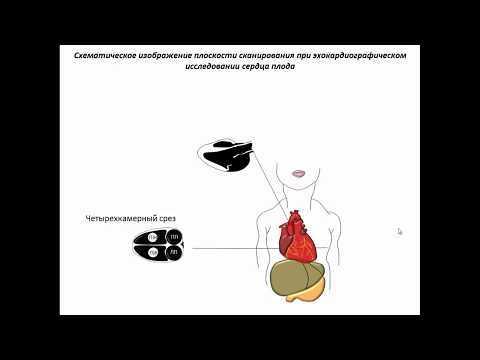УЗИ плода: вредно ли, когда слышно сердцебиение?