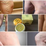 Крем-воск Здоров от варикоза и вен на ногах: реально ли помогает?