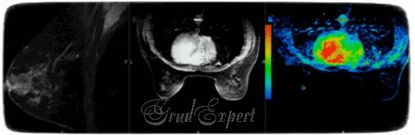 МРТ молочных желез – что показывает?