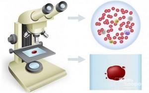 Расшифровка общего анализа крови у взрослых: таблица, как читать результаты?