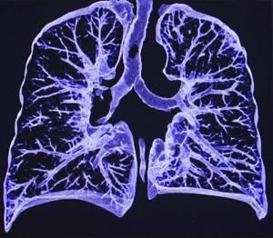 МРТ грудной клетки – что показывает?