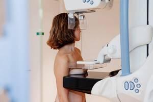 Что лучше – УЗИ или маммография молочной железы и чем они отличаются?