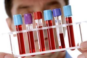 Норма мочевины в крови у женщин и мужчин:возможные причины отклонений