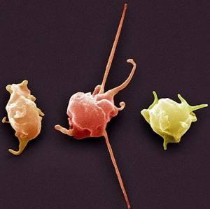 Норма тромбоцитов при беременности на разных сроках
