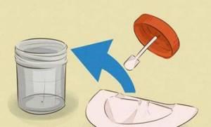 Сколько можно хранить кал для анализа в холодильнике?