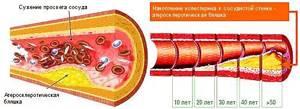 Тромбокрит: норма в крови, что это такое?