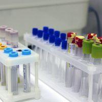 Анализ крови при раке: можно ли определить?