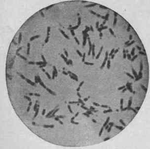 Бациллярная флора в мазке - что это такое: норма или отклонение?