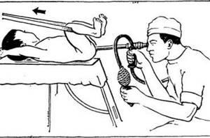 Ректороманоскопия кишечника – что это такое?