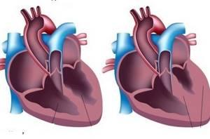 Увеличено сердце на флюорографии – серьезно ли это?