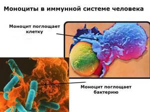Моноцитоз у детей: причины появления, симптомы, лечение, профилактика