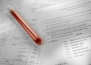 Анализ на половые гормоны: как правильно сдавать, расшифровка результатов