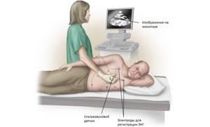 Эхокардиоскопия сердца – зачем делают?