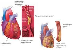 УЗИ сердца: норма. Что показывает УЗИ сердца?