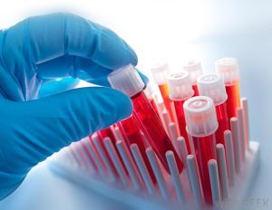Что такое гематокрит в анализе крови?