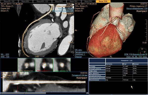 Мультиспиральная компьютерная томография – что это такое?