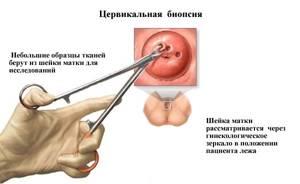 Биопсия шейки матки - больно ли это: особенности проведения процедуры