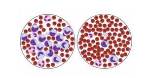 Повышены моноциты у ребенка в крови: причины, норма, что это значит?