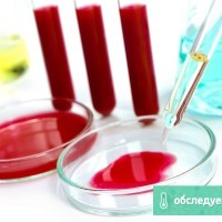 ПТИ в анализе крови – что это и каковы нормы?