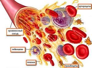 Эритроцитоз у мужчин и женщин: причины, симптомы, лечение
