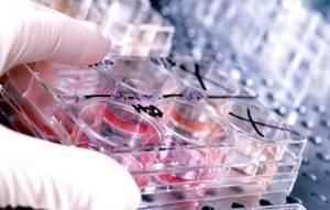 АФП в анализе крови – что означает?