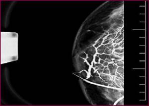 Дуктография молочных желез – что это такое?