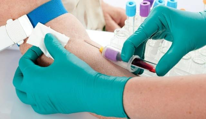 Ретикулоциты: обозначение в анализе крови, что это такое?