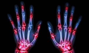 Рентген руки и кисти: фото, особенности