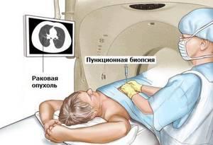 Биопсия легких: как делают, виды, назначение процедуры