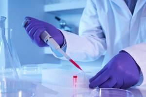 Общий анализ крови: что показывает?