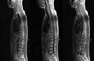 МРТ или КТ позвоночника – что лучше и почему?