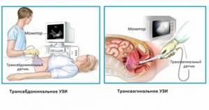 УЗИ на 4 неделе беременности: нормы, фото