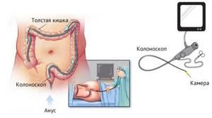 Колоноскопия кишечника – больно ли это?