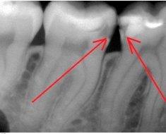 Рентген зубов: как делают и как часто можно? (с фото)