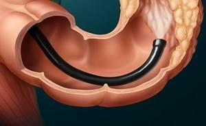Компьютерная томография кишечника (КТ): как готовится и что показывает?