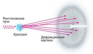 Рентген грудной клетки: что показывает, как часто делать?