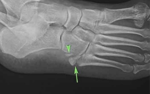 Рентген стопы: фото снимков, как делают?