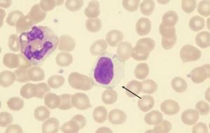 Функции лимфоцитов в крови: за что отвечают?