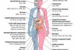РЭА в анализе крови – что означает?