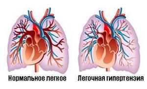 Расшифровка результатов УЗИ сердца у взрослого и ребенка
