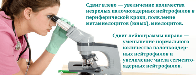 Лейкоцитарная формула крови: расшифровка у взрослых, норма и показатели